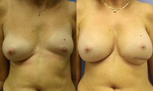 Patient 1a Breast Asymmetry Before and After