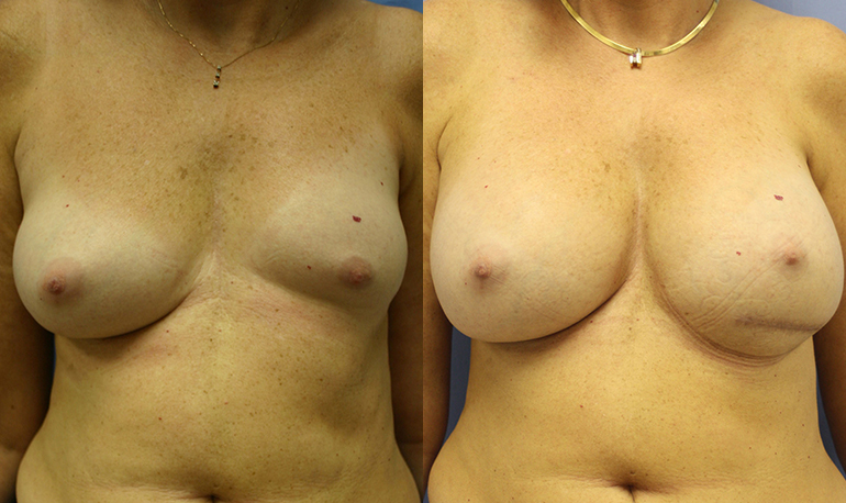 Breast Asymmetry Palm Harbor Patient 1