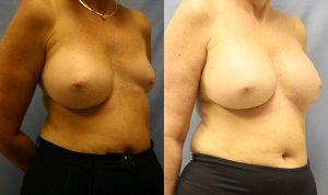 Patient 1b Breast Asymmetry Before and After