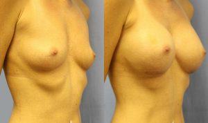 Patient 6b Breast Augmentation Before and After