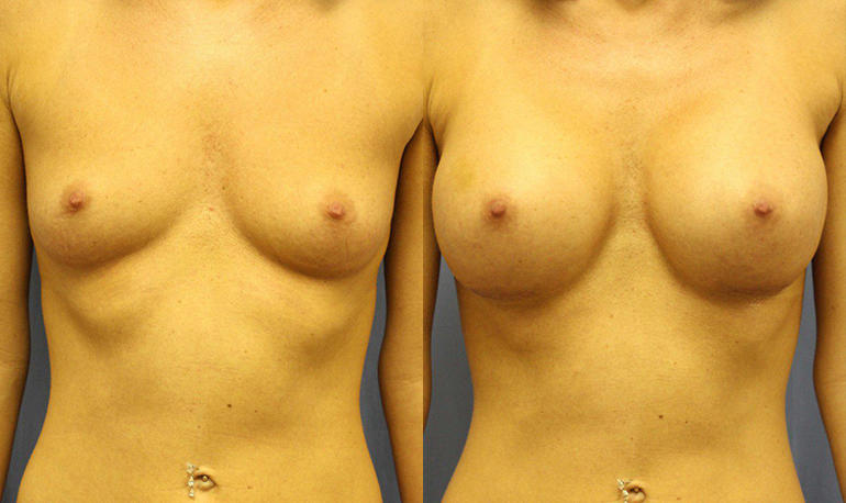 Breast Augmentation Clearwater Patient 1