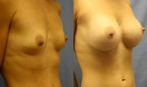 Breast Augmentation Clearwater Patient 2.1