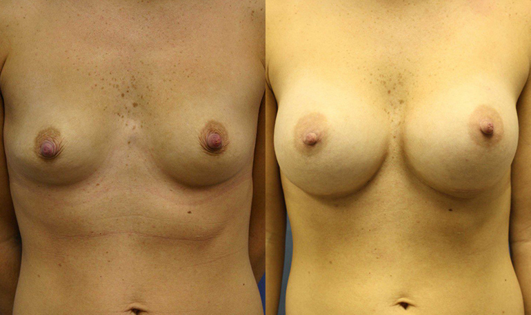 Breast Augmentation Clearwater Patient 2