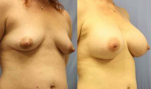Patient 8b Breast Augmentation Before and After