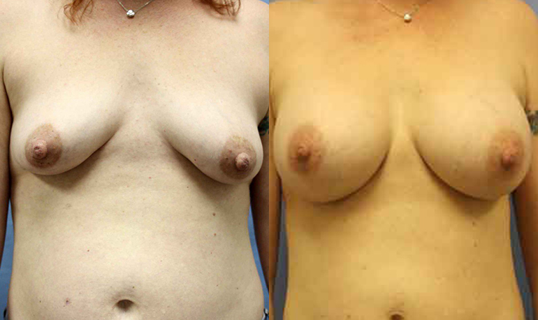 Breast Augmentation Clearwater Patient 3