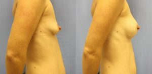 Patient 9b Breast Augmentation Before and After