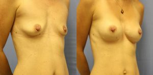 Breast Augmentation Clearwater Patient 4.2