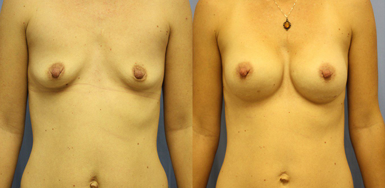 Breast Augmentation Clearwater Patient 4