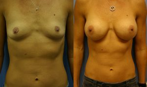 Breast Augmentation Palm Harbor Patient 1.2