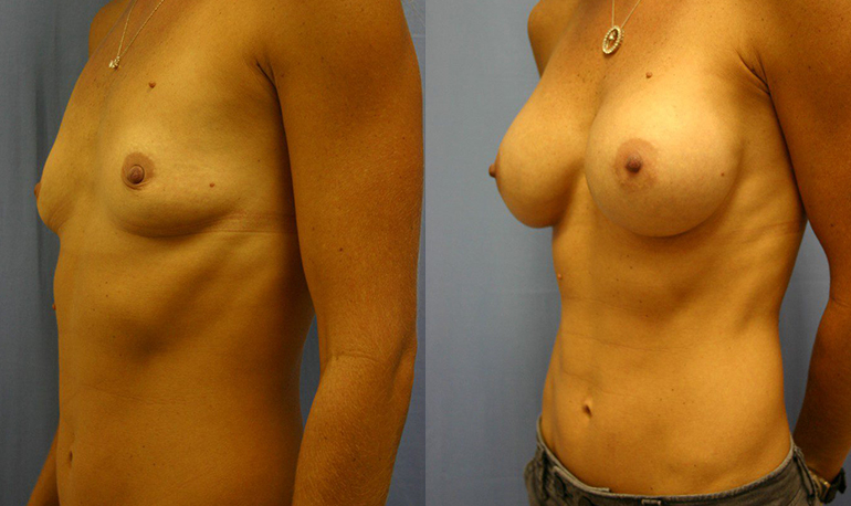Breast Augmentation Palm Harbor Patient 1