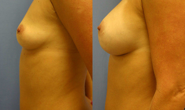 Breast Augmentation Palm Harbor Patient 2