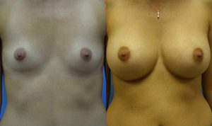 Patient 3b Breast Augmentation Before and After