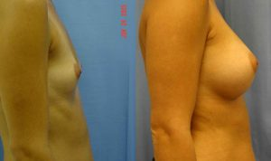 Breast Augmentation Palm Harbor Patient 3.2