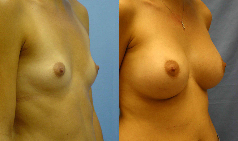 Breast Augmentation Palm Harbor Patient 3