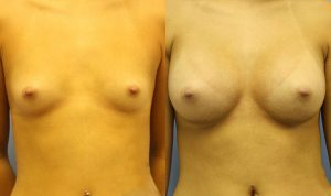Breast Augmentation Palm Harbor Patient 4.1