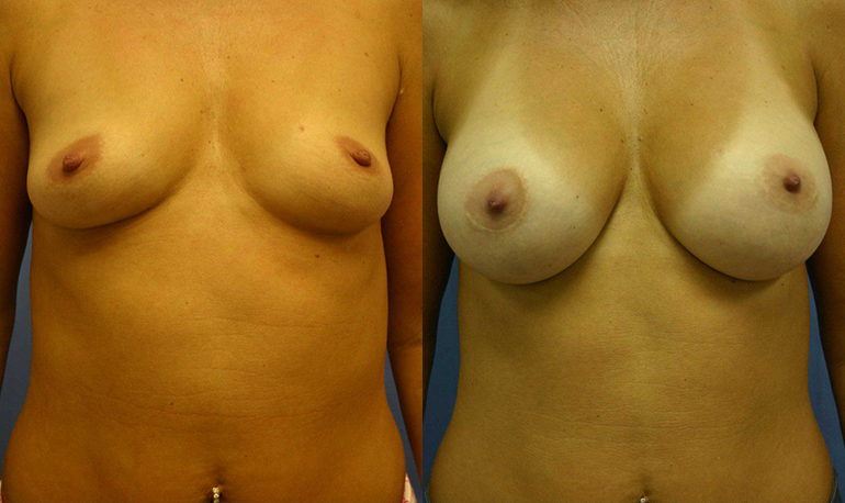 Breast Augmentation Palm Harbor Patient 2.1
