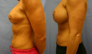 Breast Augmentation Palm Harbor Patient 5.1