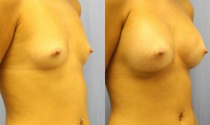 Breast Augmentation Palm Harbor Patient 4.2