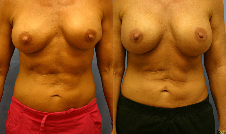 Breast Augmentation Palm Harbor Patient 5