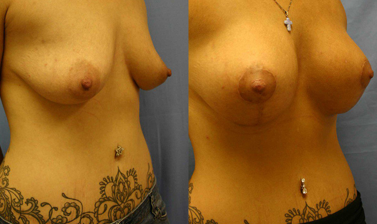 Breast Lift Palm Harbor Patient 1