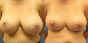 Breast Reduction Palm Harbor Patient 1
