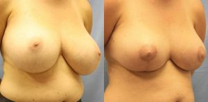 Breast Reduction Palm Harbor Patient 1.1