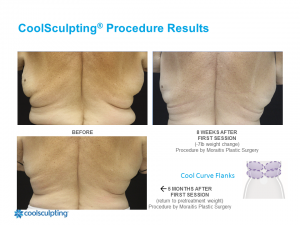 CoolSculpting Clearwater Patient 1.1