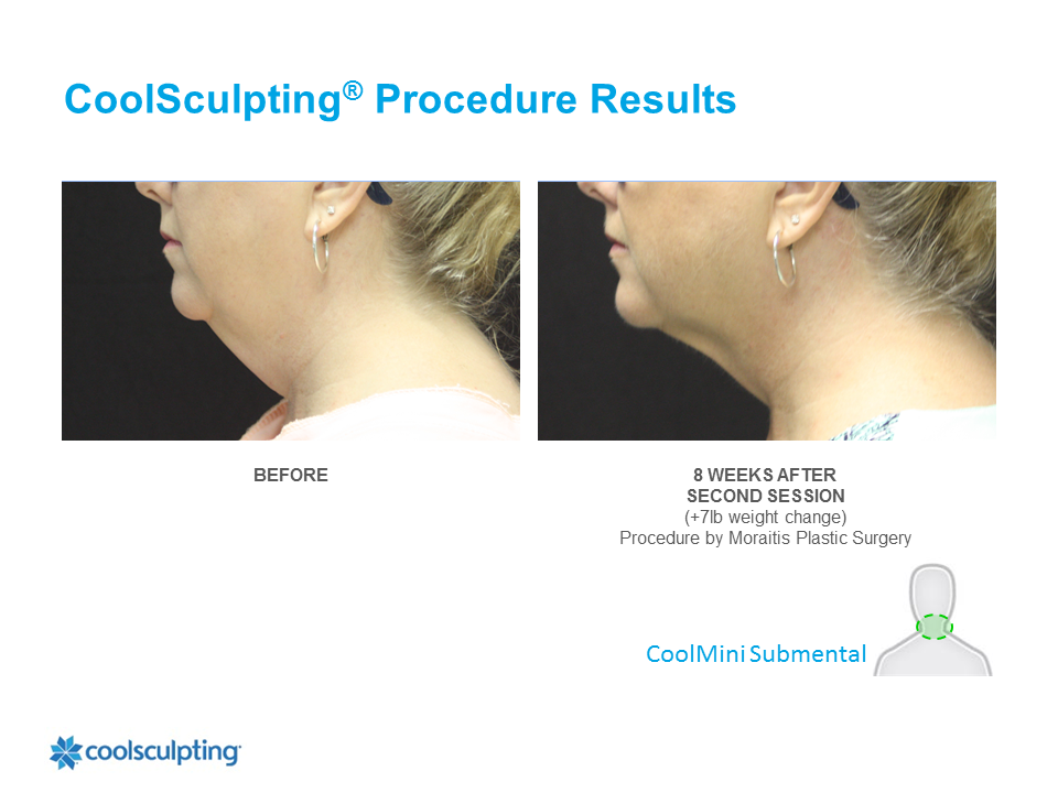 CoolSculpting Clearwater Patient 2