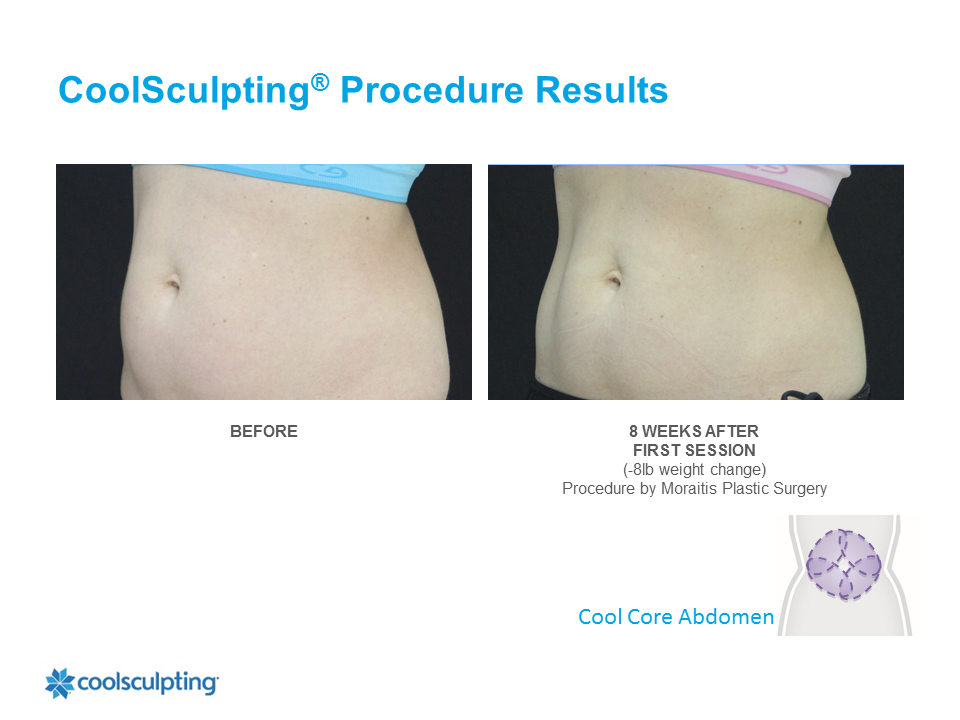 CoolSculpting Clearwater Patient 3