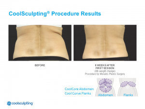CoolSculpting Clearwater Patient 4.1