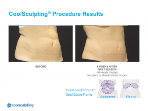 CoolSculpting Clearwater Patient 4.2