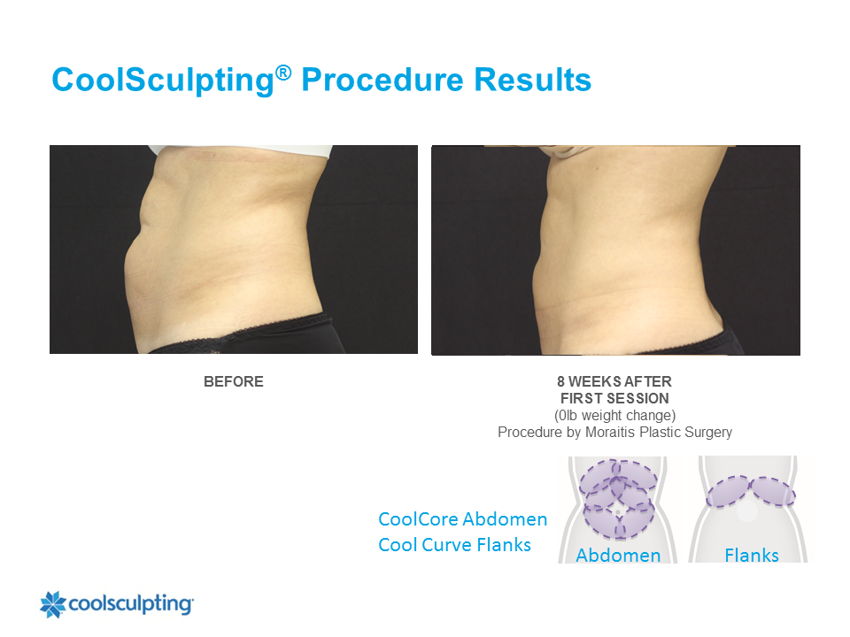 CoolSculpting Clearwater Patient 4
