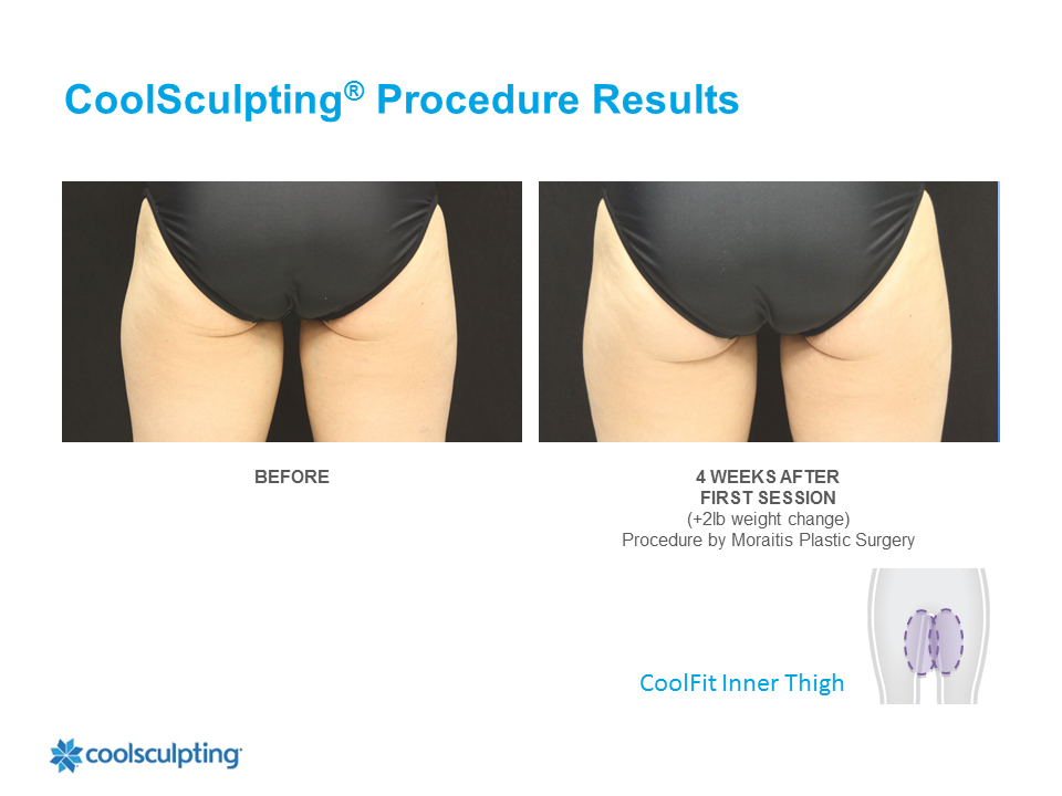 CoolSculpting Clearwater Patient 5