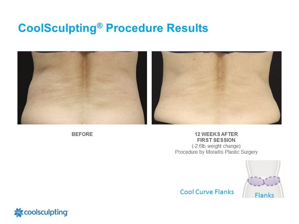 CoolSculpting Clearwater Patient 7