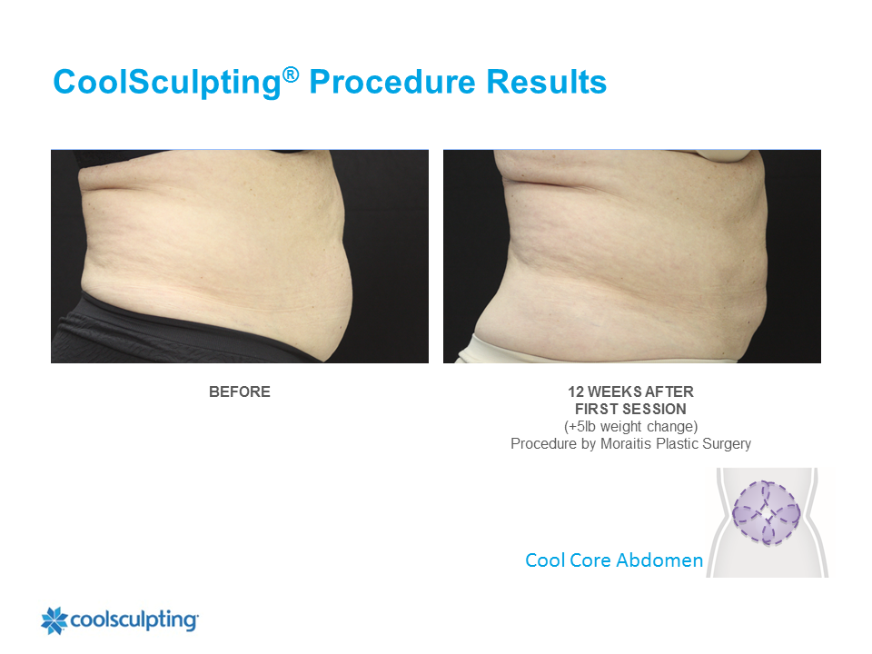 CoolSculpting Clearwater Patient 8