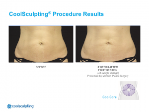 CoolSculpting Palm Harbor Patient 1