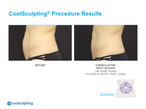 CoolSculpting Palm Harbor Patient 1.1