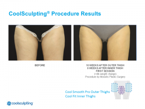 CoolSculpting Palm Harbor Patient 3.1