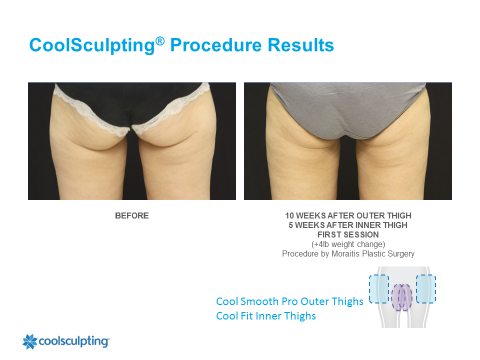 CoolSculpting Palm Harbor Patient 3