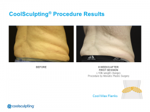 CoolSculpting Palm Harbor Patient 4.1