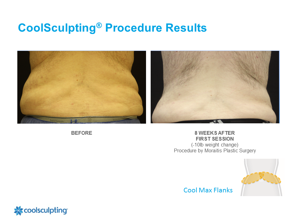 CoolSculpting Palm Harbor Patient 4