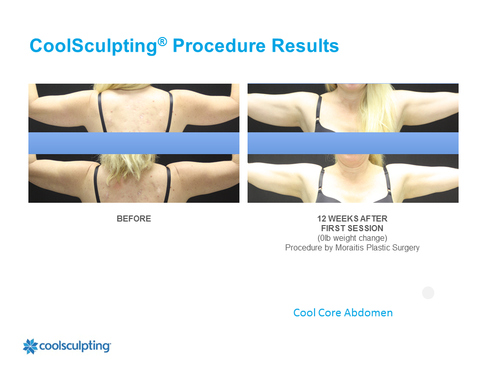 CoolSculpting Palm Harbor Patient 5