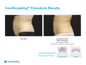 CoolSculpting Palm Harbor Patient 7.1