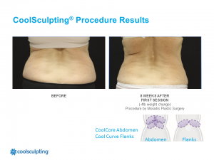 CoolSculpting Palm Harbor Patient 7.2