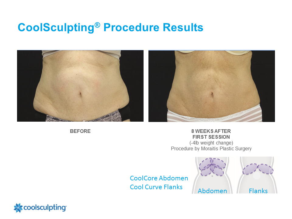CoolSculpting Palm Harbor Patient 7