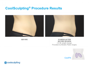 CoolSculpting Palm Harbor Patient 8.1
