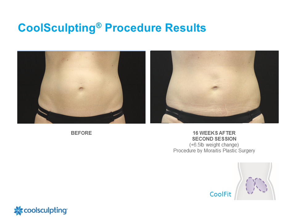 CoolSculpting Palm Harbor Patient 8
