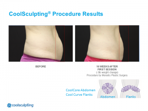 CoolSculpting Palm Harbor Patient 9.1