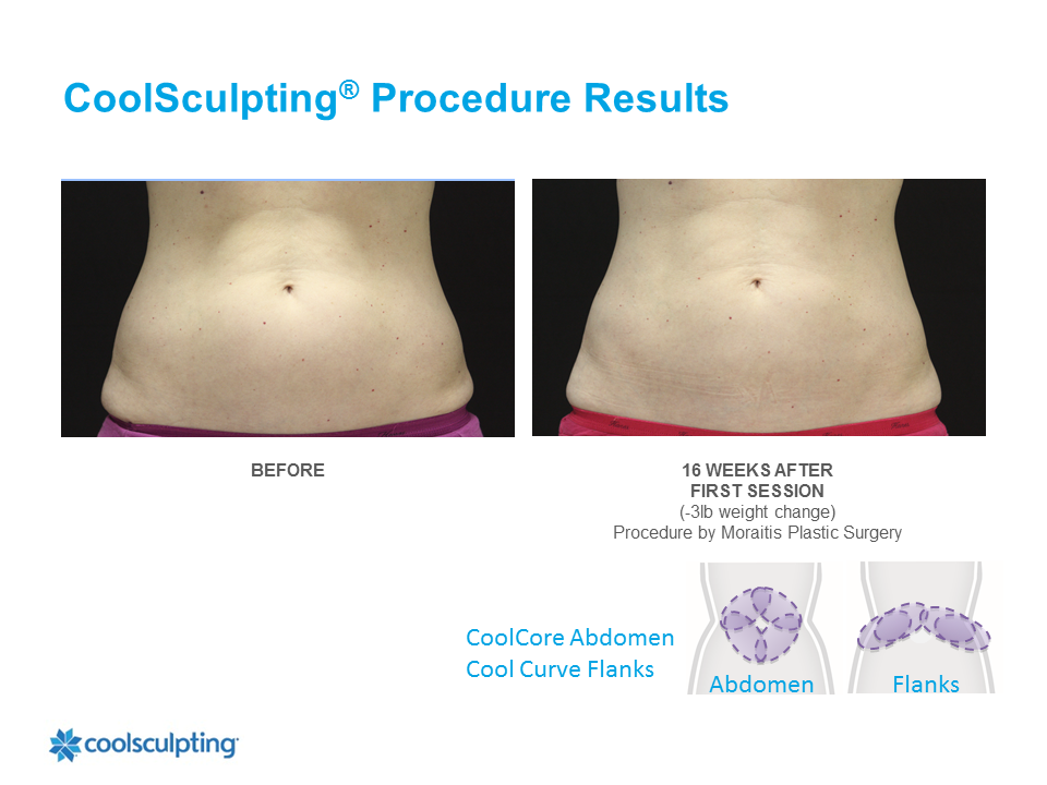 CoolSculpting Palm Harbor Patient 9