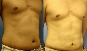 Patient 1a Liposuction Before and After